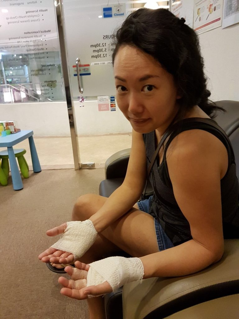 Looking like a burn victim, or some muay thai exponent!